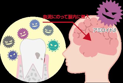 歯周病がアルツハイマー型認証の原因となる理由図解