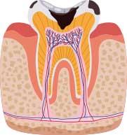イラスト断面図:虫歯