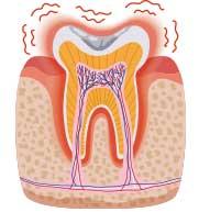 イラスト断面図:歯周病